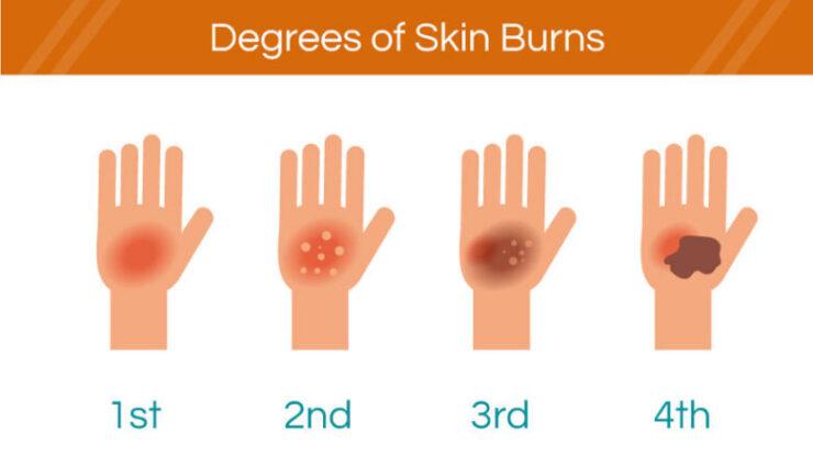 degrees of skin burn on hand