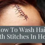 How To Wash Hair With Stitches In Head